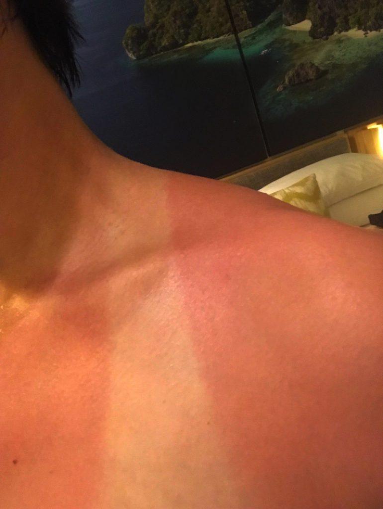 エルニドでは日焼けに注意